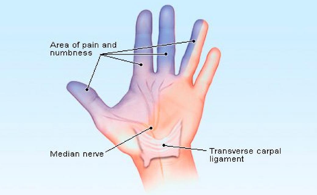 Tintelingen in je vinger en hand